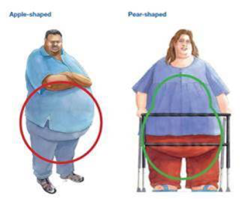 Selecting equipment based on patient's body shape